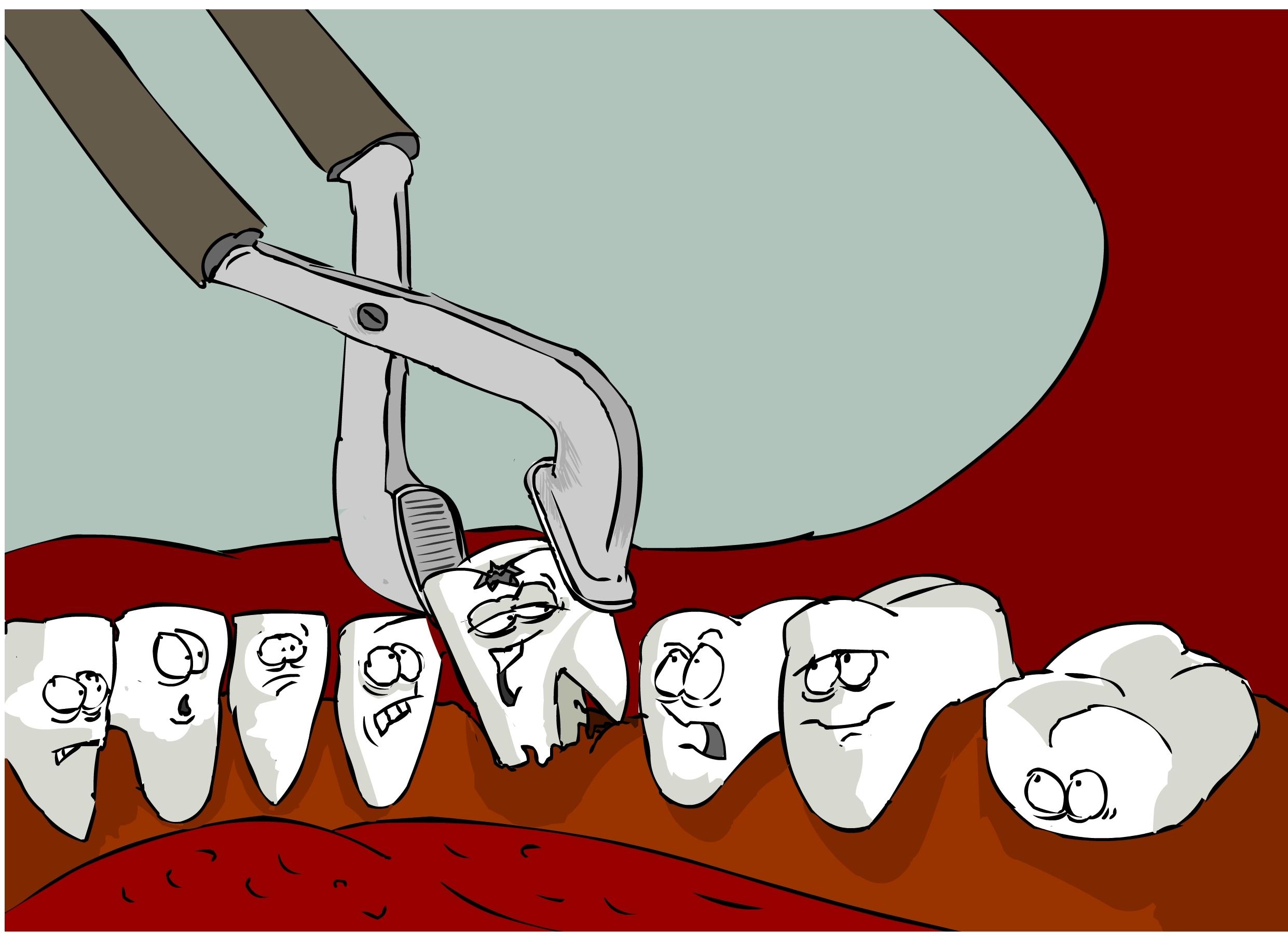Как удаляют зубы